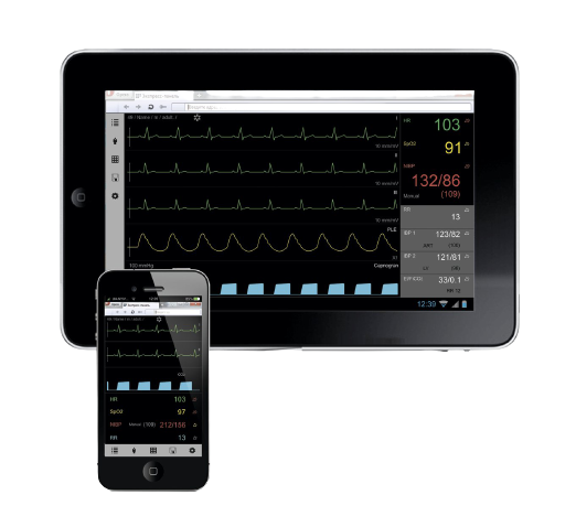 UniView remote monitoring