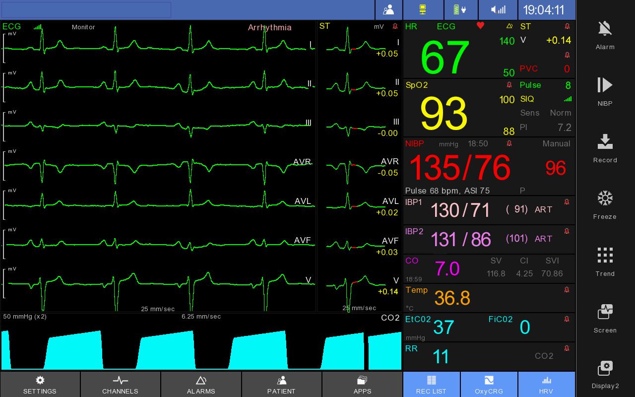 monitor screen 800 600 2